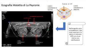 Malattia di La Peyronie: visione ecografica