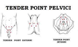 pubalgia e problemi di erezione